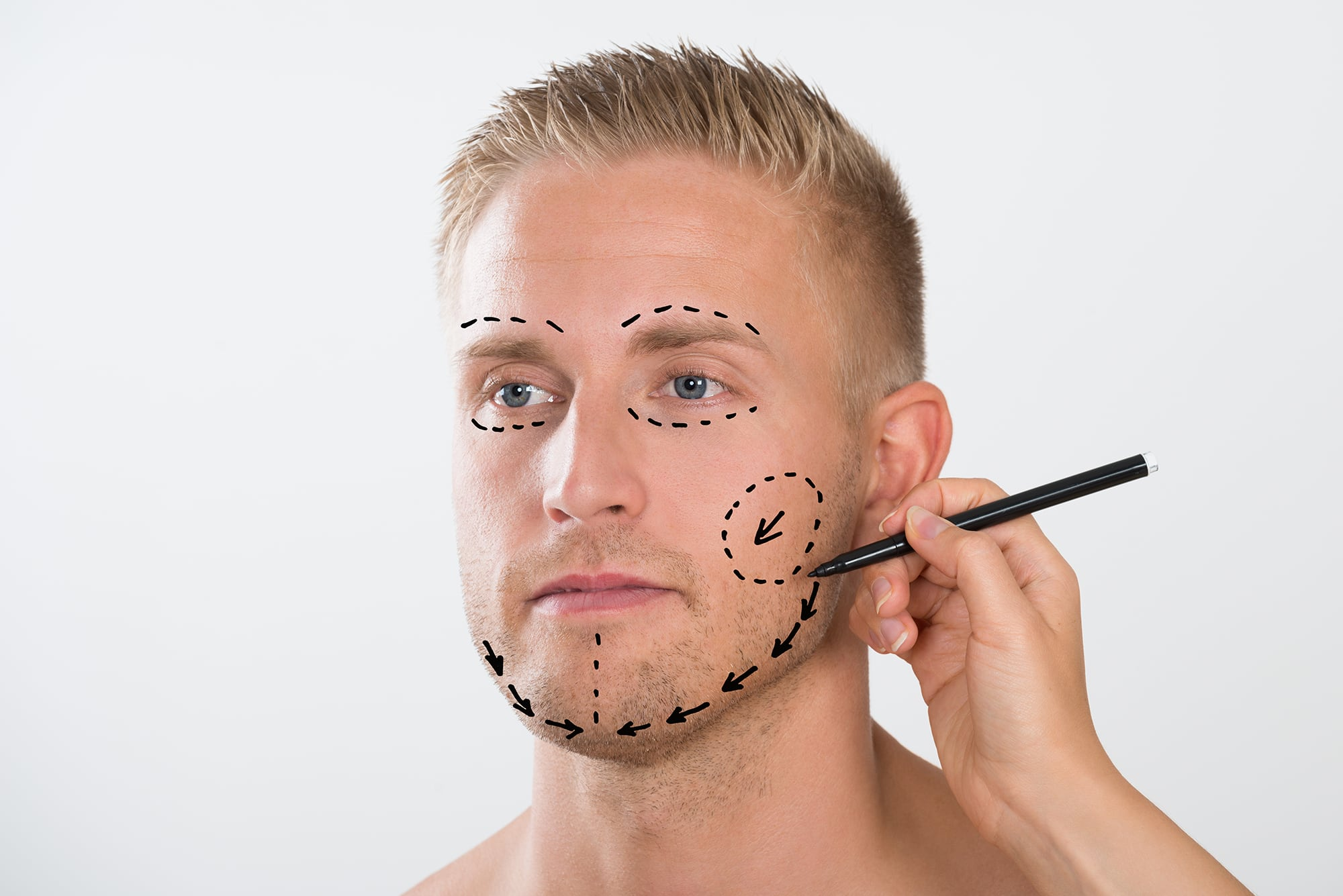 Allentown, PA patient getting prepared for facial liposuction
